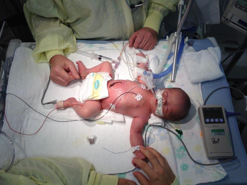 Hugo quelques heures après sa naissance